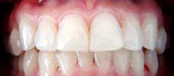 cosmetic dentistry whitening after