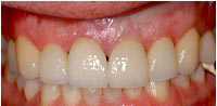 cosmetic dental crown